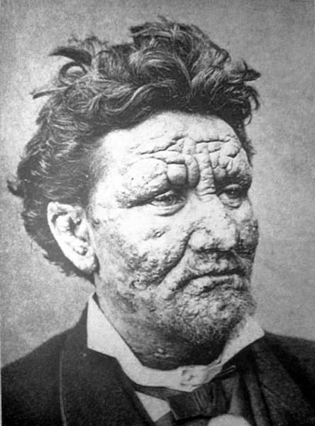 A 24-year-old man with leprosy (1886)