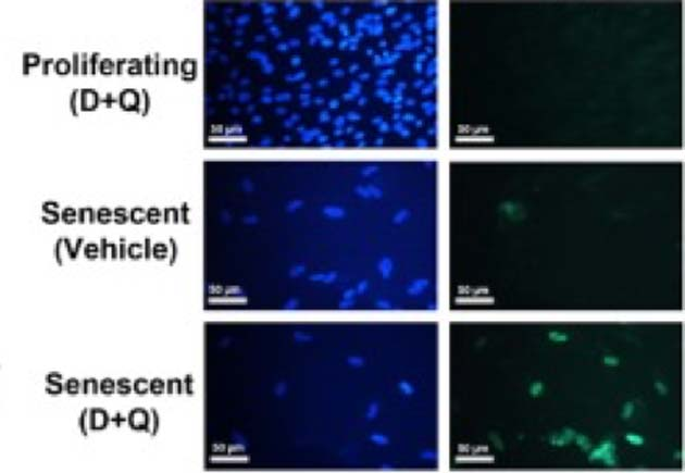 D&Q administration reduced the populations of senescent human adipose progenitor cells, but not their normal (proliferating) counterparts, in staining assays (blue: DAPI; green: TUNEL). (Source: Y. Zhu, et al, 2015)