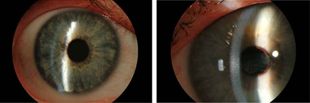 Eye of a person with a healthy cornea (left) vs. eye of person with corneal disease. (Source: Carolina Eye Associates)