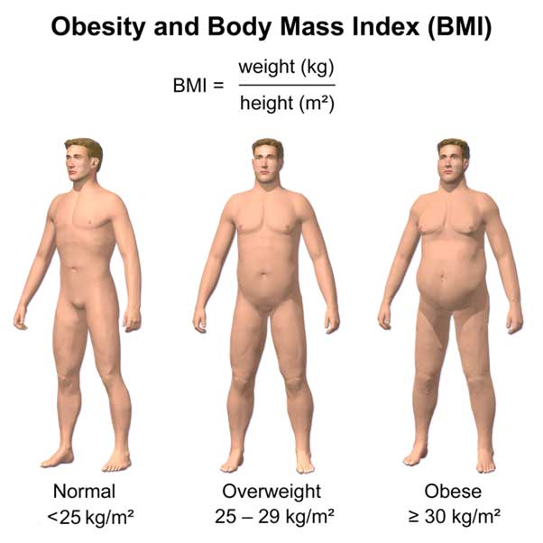 Obesity and BMI