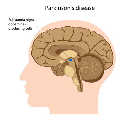 PD affects the substantia nigra in the brain, a region that controls balance and movement. (Source: NIH, Genetics Home Reference)