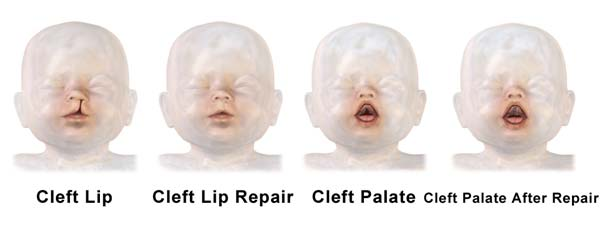 Picture showing an illustration of a child with a cleft lip and palate and its subsequent repair by plastic surgery. (Source: Wikimedia Commons)