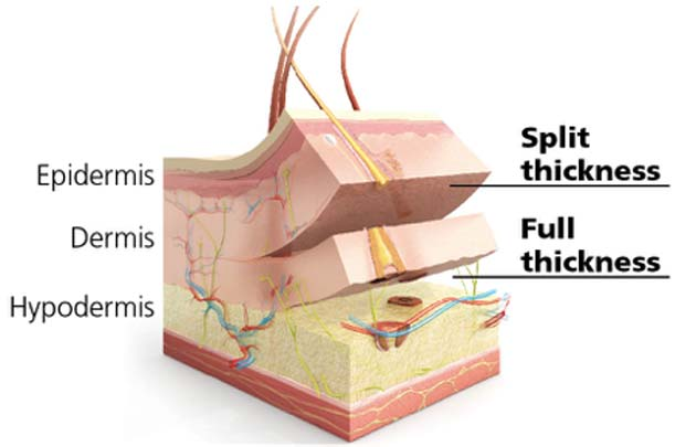 Split- and full-thickness grafts used for the treatment of deep skin wounds. (Source: Dr. Michael K. Kim)