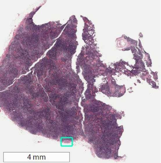 Whole-slide image of sentinel lymph node biopsy with area of metastatic breast cancer highlighted in green square