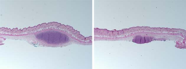A microscopic view of mouse-skin samples treated with synthetic human sebum and with either acne-associated (left) or health-associated P. acnes (right). (Source: UC San Diego Health)
