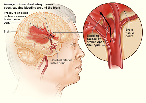This diagram highlights cerebral artery aneurysms and what happens when one of them bursts. (Source: National Heart Lung and Blood Institute (NIH))