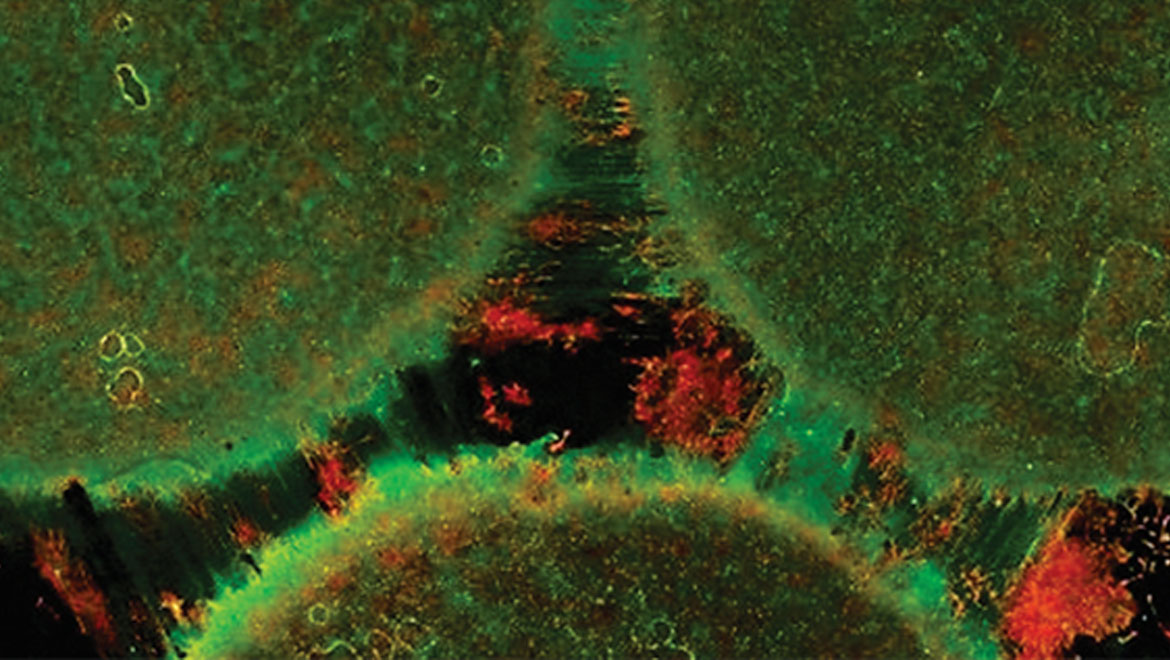 New model mimics the connectivity of the brain by connecting three distinct brain regions on a chip (Image courtesy of the Disease Biophysics Group/Harvard University)