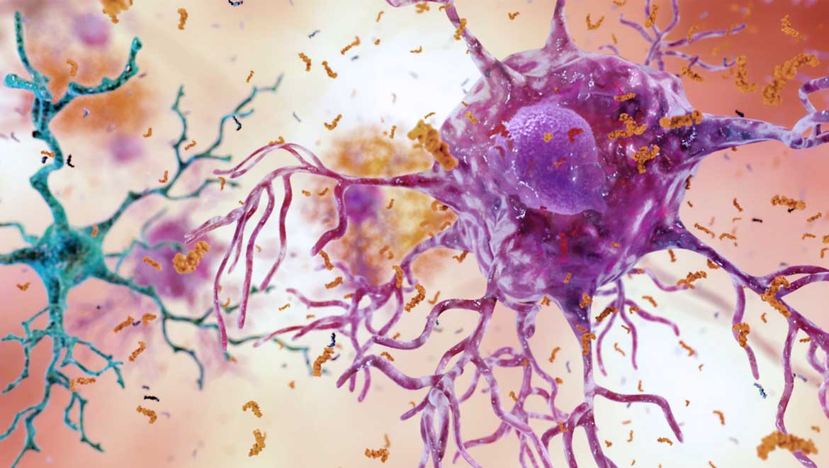 Does Alzheimer's Really Start In The Hippocampus Of The Brain?
