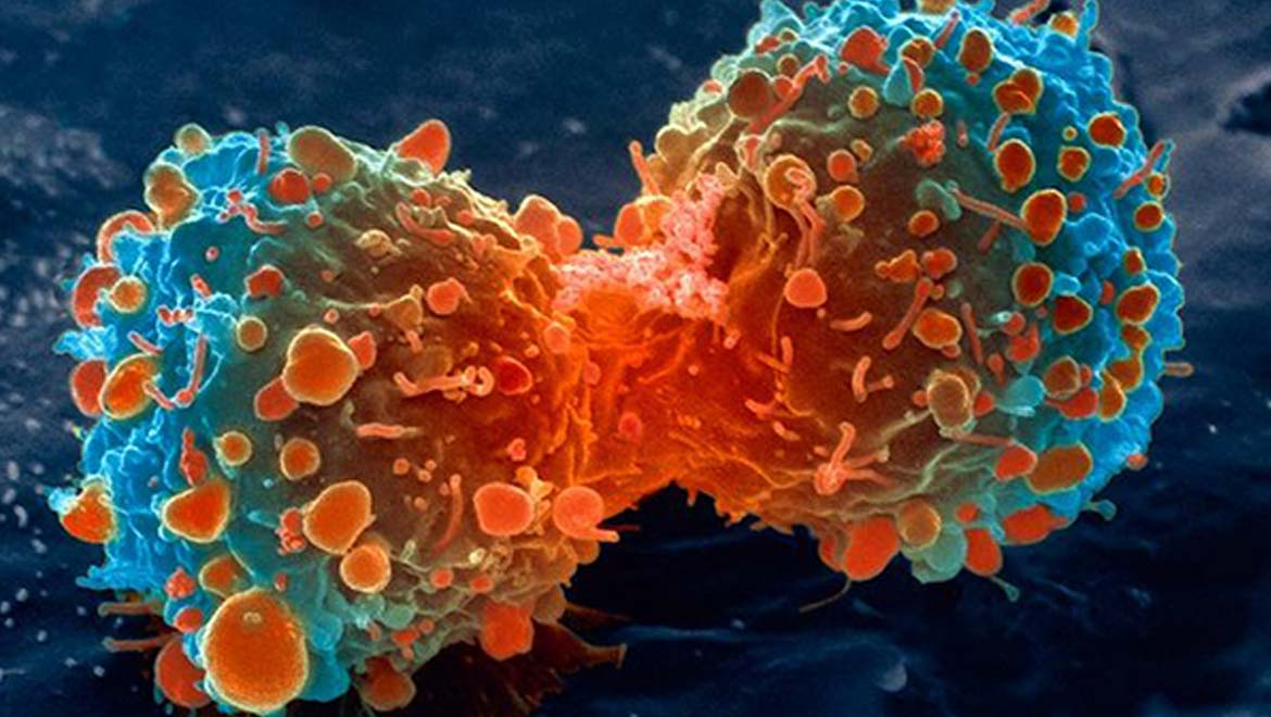 A dividing lung cancer cell. Credit: National Institutes of Health