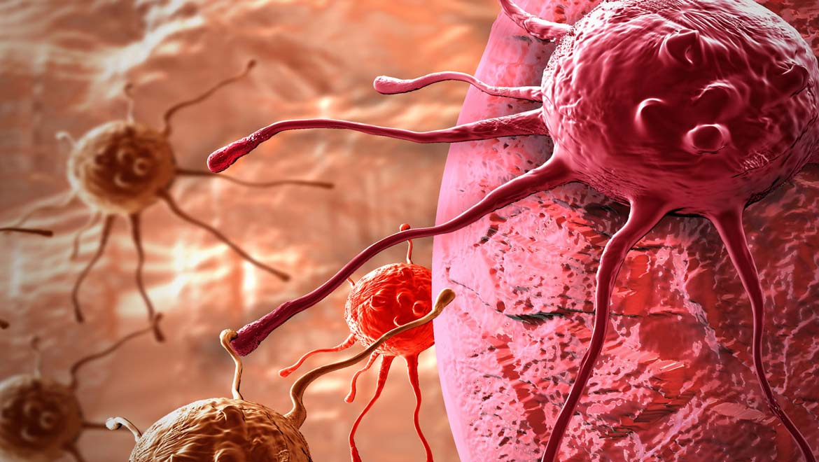 New Study Challenges Role of Mutation Rates in Age-Related Cancers