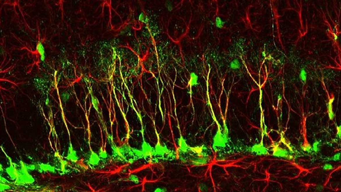 Do Adults Grow New Brain Cells? A Scientific Debate Rages On…