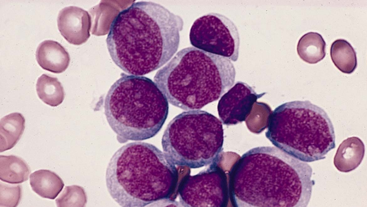 Suppressor Gene For Leukemia Can Be Found On The Y Chromosome