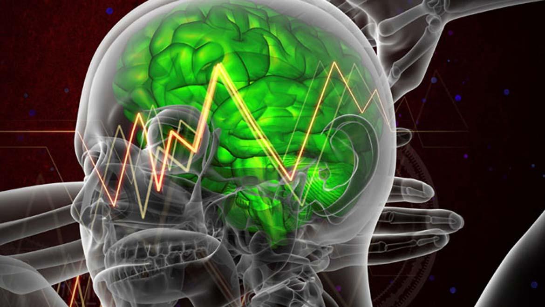 Illustration of brain zap