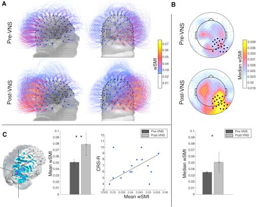 Information sharing increases after vagus nerve stimulation over centroposterior regions. (Cell)