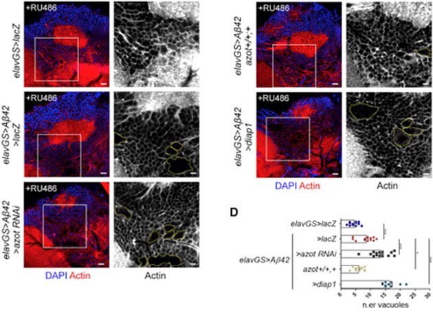 Imaging studies of the 'memory center' of the fruit fly brain, with cell nuclei (blue) and the cellular cytoskeletons (actin, red) bound to fluorescent markers (left) or visualized simply through the cytoskeletons alone (right). Vacuoles are visible within yellow squares. Sub-figure (D) shows the effect of elavGS>Aβ42 on vacuole numbers, in the presence or absence of Azot and in the presence of DIAP1, an apoptosis inhibitor. (∗∗∗:p < 0.001, ∗∗:p < 0.01, ∗:p < 0.05.) (Source: Coelho, D. S. et al, Cell Reports, 2018)
