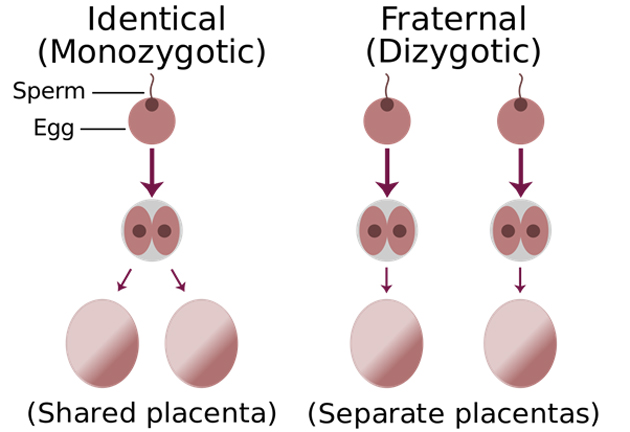Monozygotism leads to a shared placenta, whereas dizygotism does not. (Source: Wikimedia Commons)
