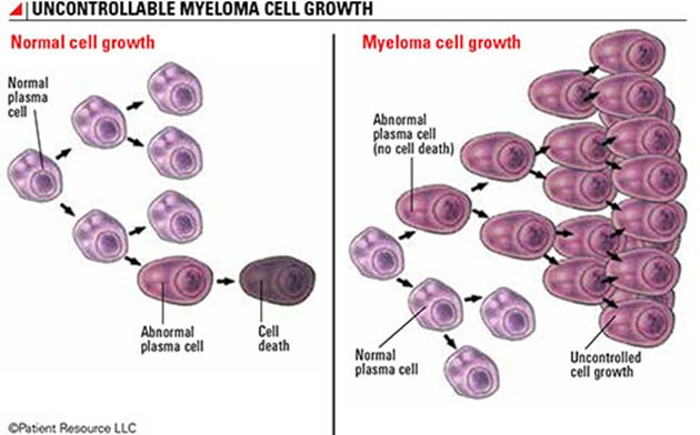 Image showing the difference between normal cell development (left) and the multiplication of myeloma cells in the bones of the body (right). (Source: Patient Resource LLC)
