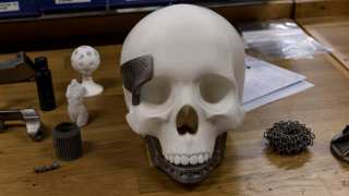 3D Printing to Heal Skull Fractures