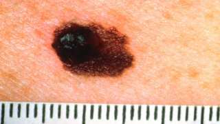 New Hope for Old Melanoma Treatment: Study Indicates Potential for Anti-PD-1 in Novel Combination