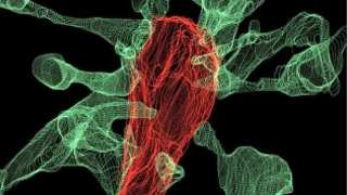 Microglia, the Gardeners of the Brain: New Imaging Techniques Confirms Neurodevelopmental Theory