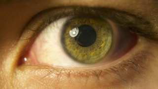Gene Therapy for Inherited Retinal Dystrophies Licensed by Novartis