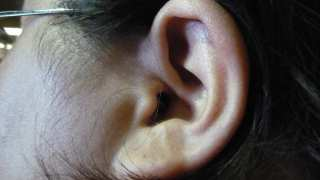 Tuning Out Tinnitus: New Study Indicates Possible New Therapy for This Condition