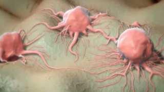 Keytruda A New Approved Cancer Drug