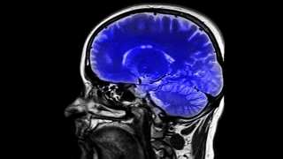 Mind Reading Technology: One Step Closer?