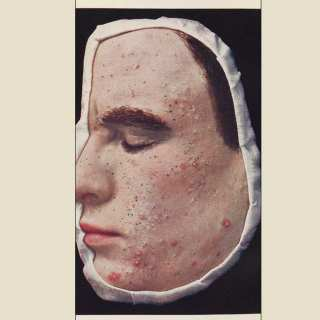 Treating Acne Using The 'Good'/'Bad' Bacteria Theory