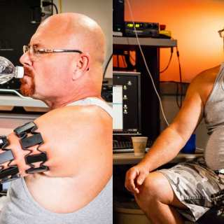 A pioneering surgical technique has allowed an amputee to attach APL's Modular Prosthetic Limb directly to his residual limb, enabling a greater range of motion and comfort than previously possible. Credit: JHUAPL